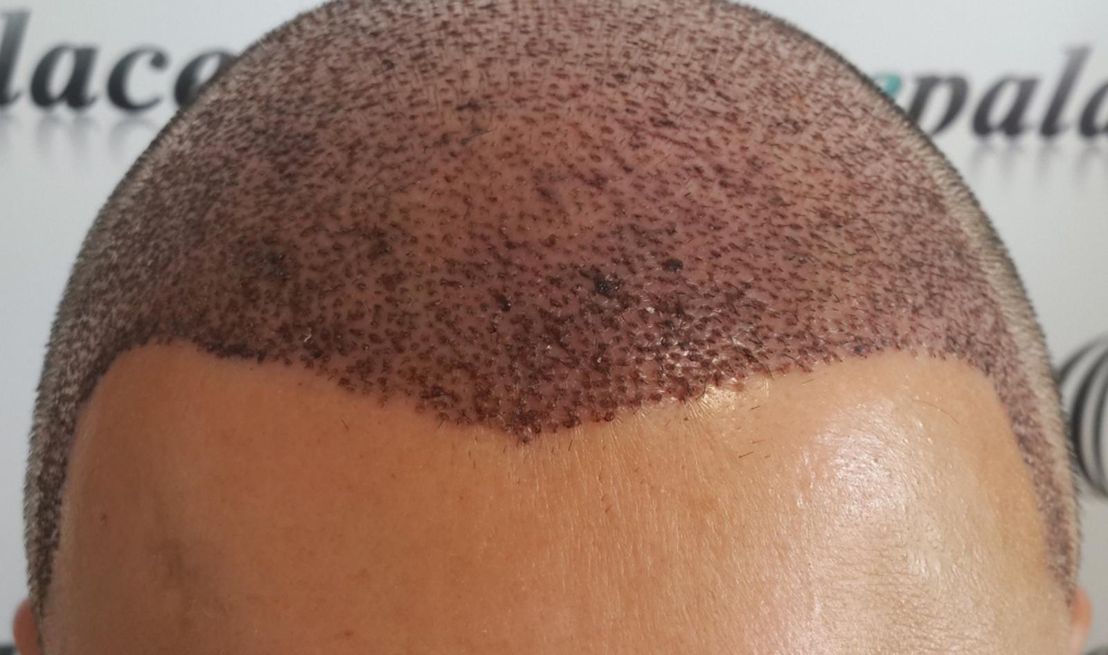 Fue Saç Ekimi Nedir
